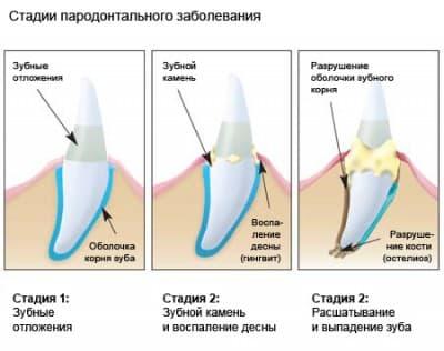 Стадии зубного камня